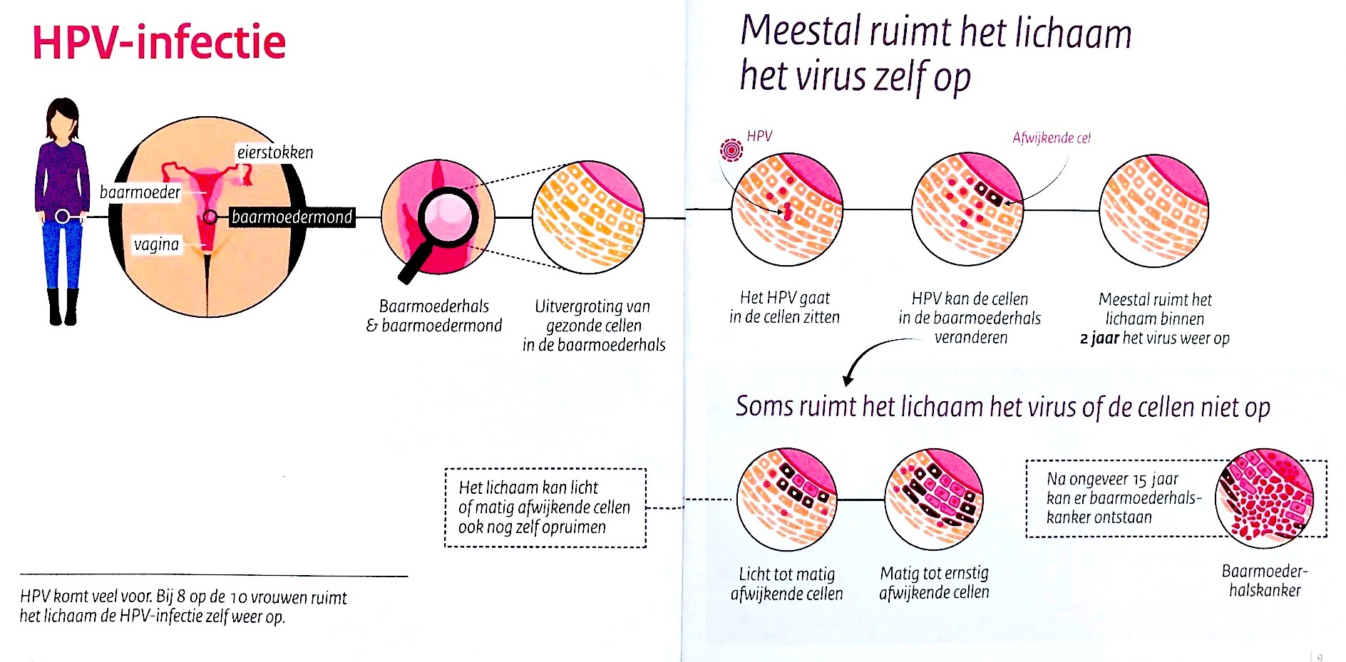 hpv virus is dat een soa)