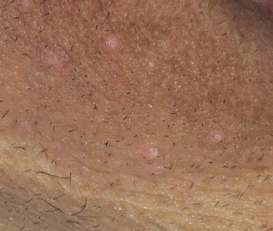 hpv warts brown