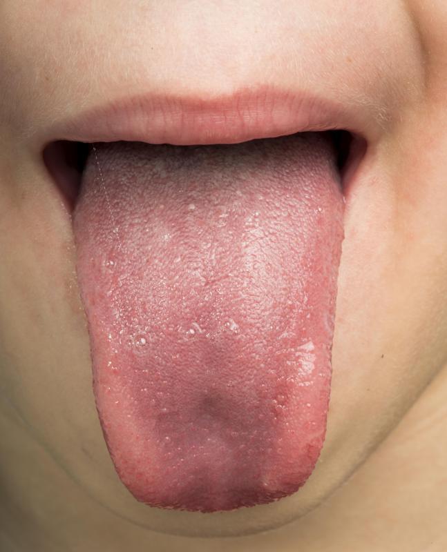 human papillomavirus in tongue