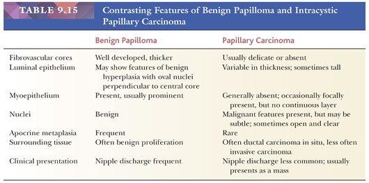 intraductal papilloma vs duct ectasia que es el oxiuriasis
