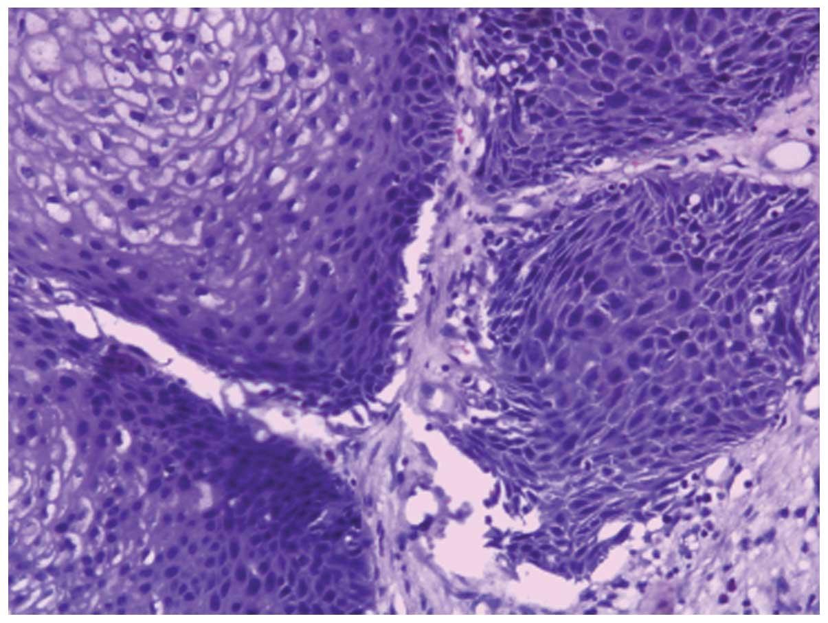inverted papilloma malignant change)