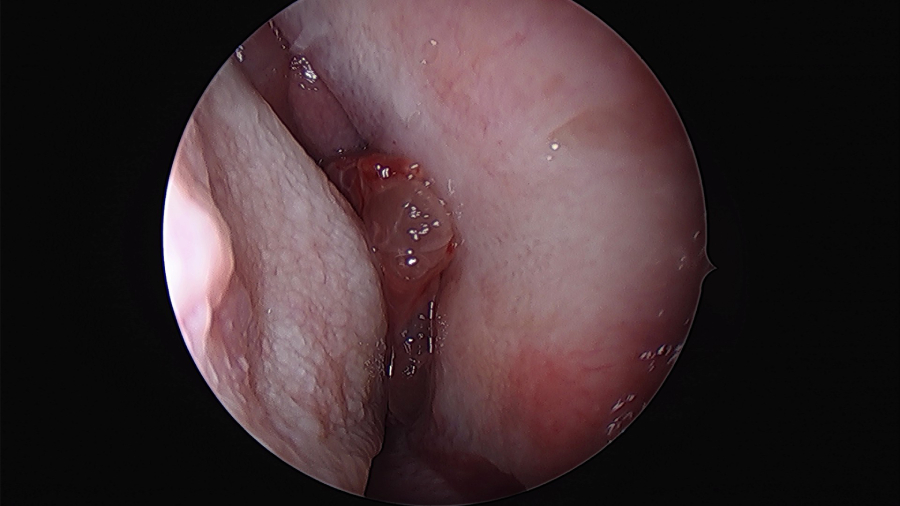inverted papilloma nasal cavity