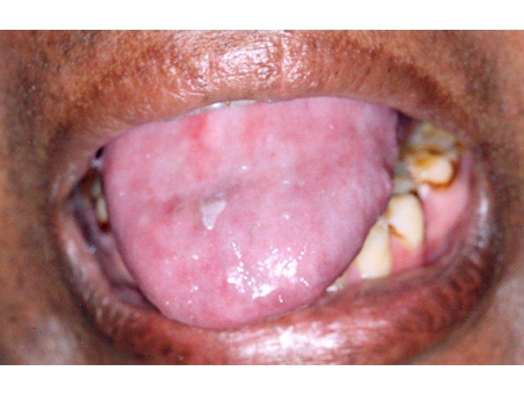 lingual papillomas