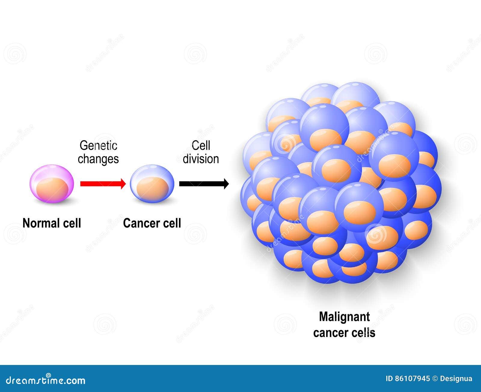 malign cancer tumor