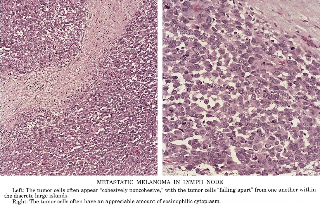 Cancer after hodgkins lymphoma