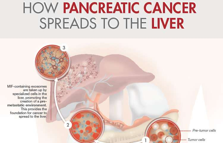 metastatic cancer and pancreatic