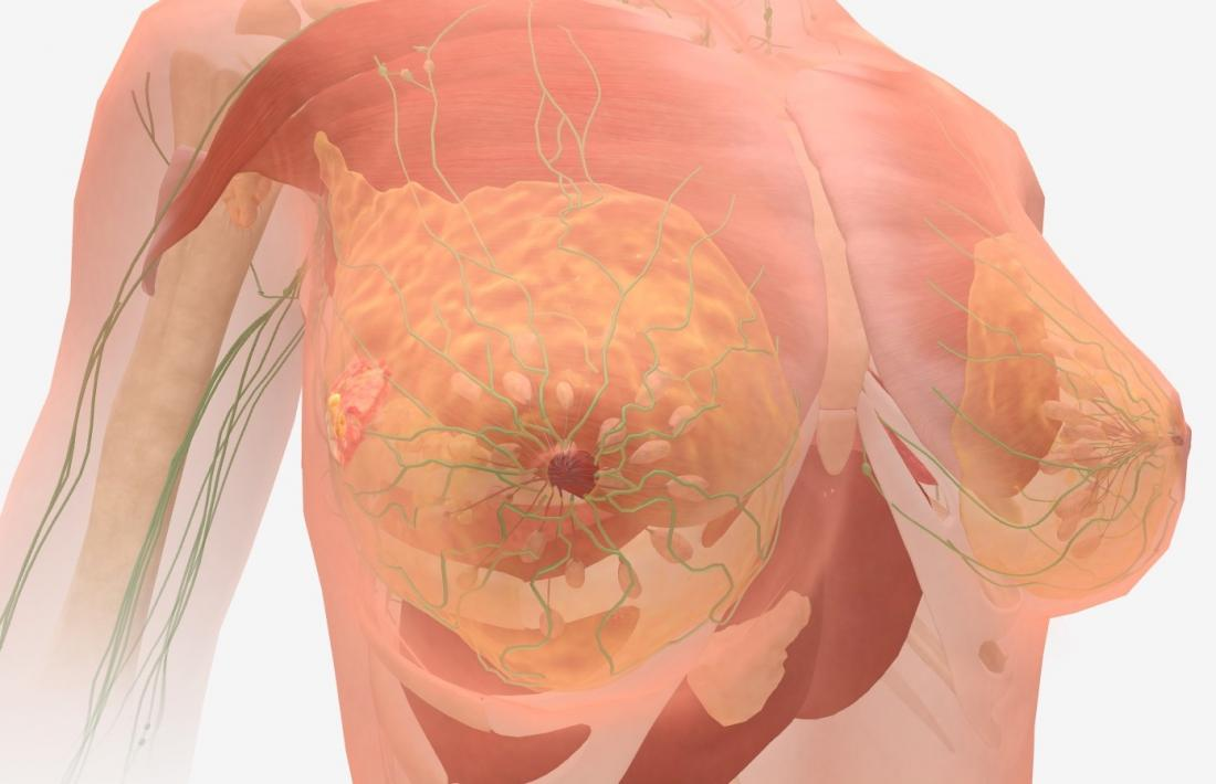 Metastatic cancer how long can you live, Papillary thyroid cancer total thyroidectomy