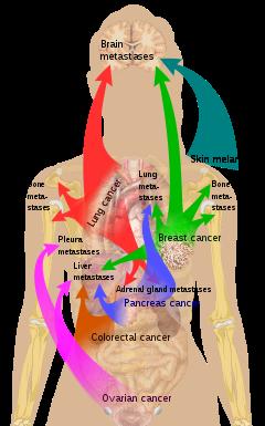 metastatic cancer marathi)