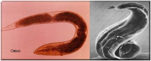 mâncărime în tratamentul viermilor de anus)