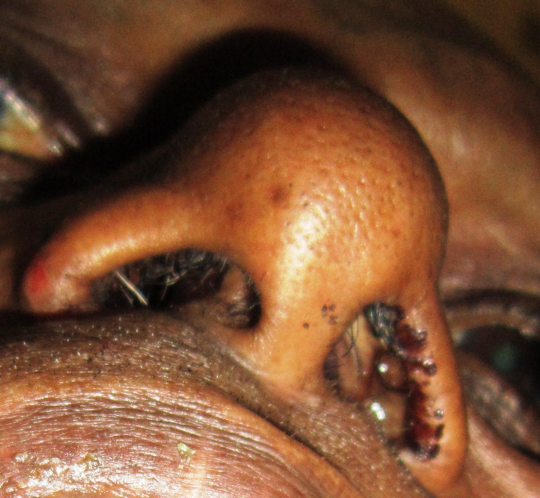 Treatment for nasal papilloma - Human papillomavirus infection of the skin