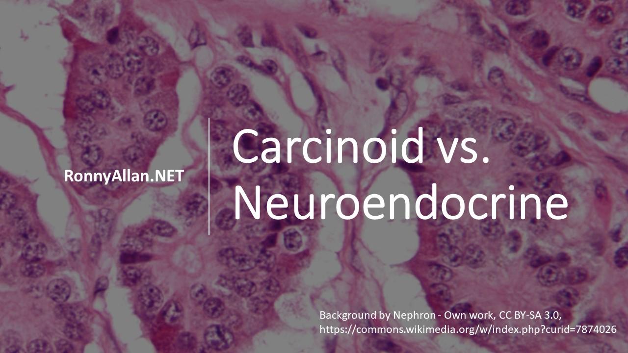 neuroendocrine cancer means)
