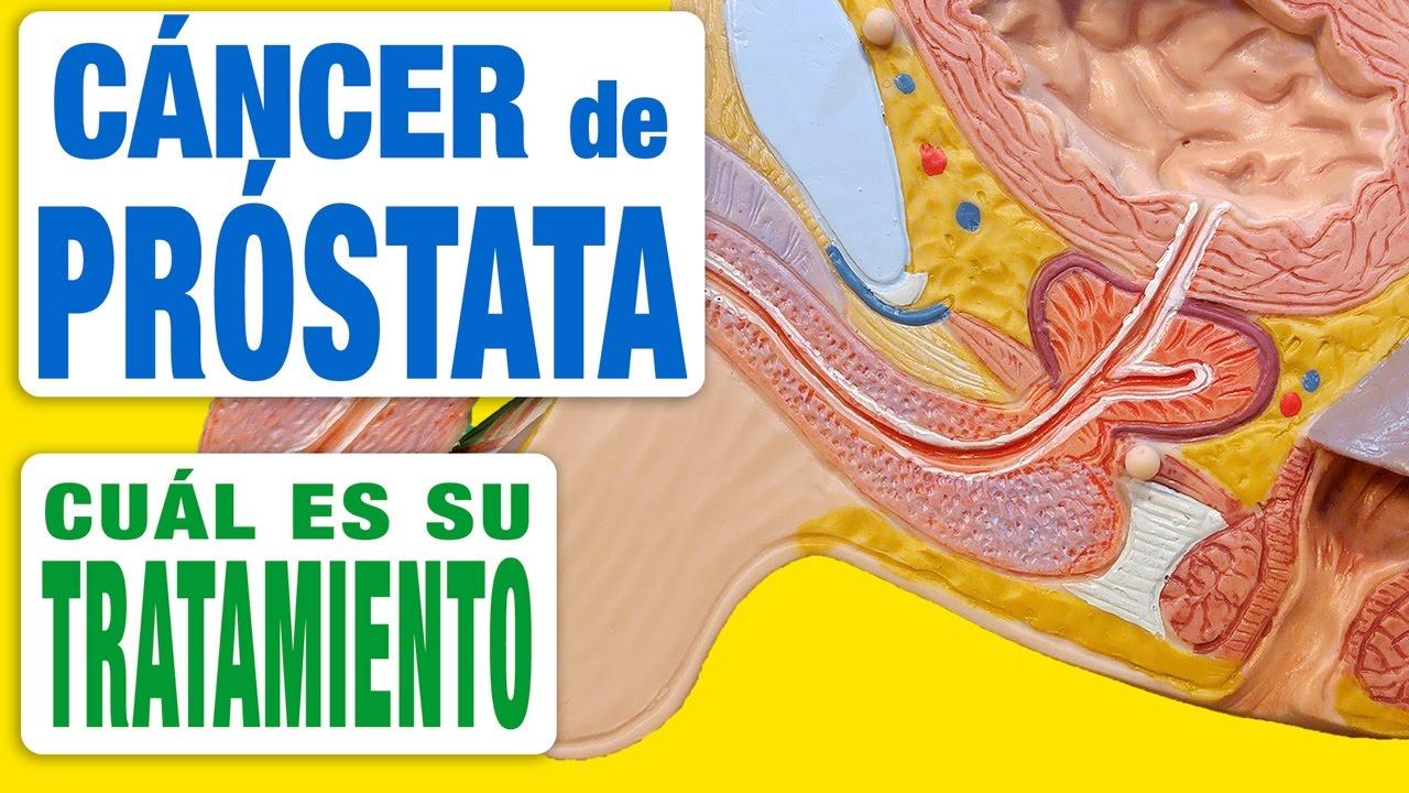 Tratament de Cancer de Prostata