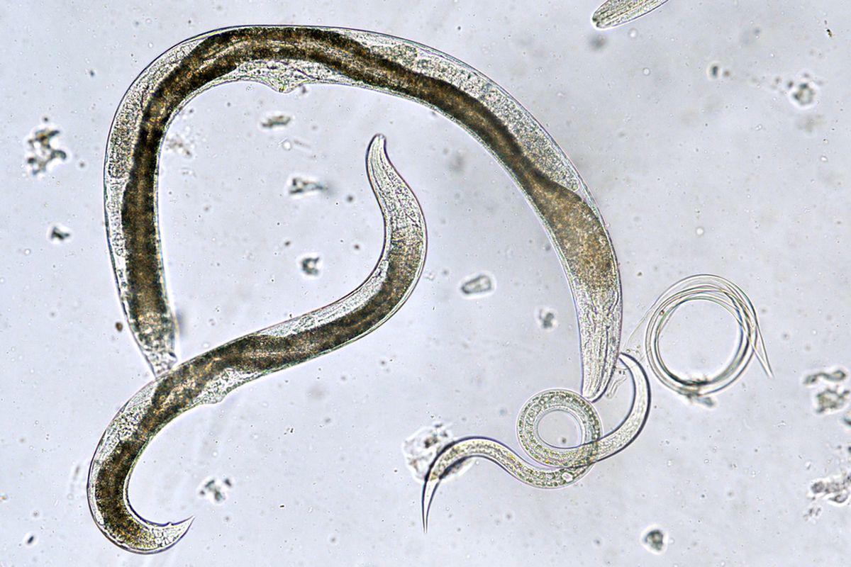 Oxiuri – totul despre boala parazitara