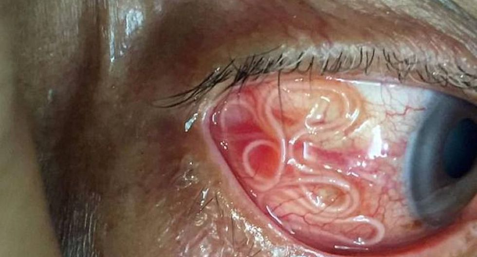 traiter papillomavirus homme hpv on mouth treatment
