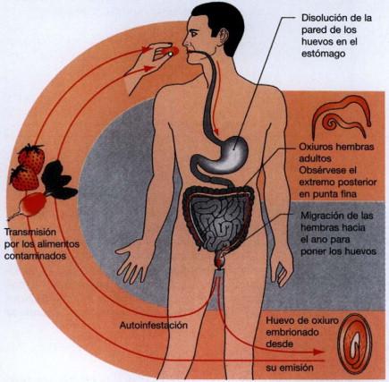 oxiuros enfermedad