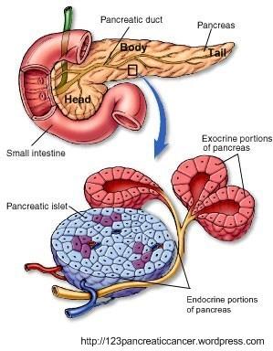Cancer pancreatic - Tot ce trebuie să ştii | Cancer