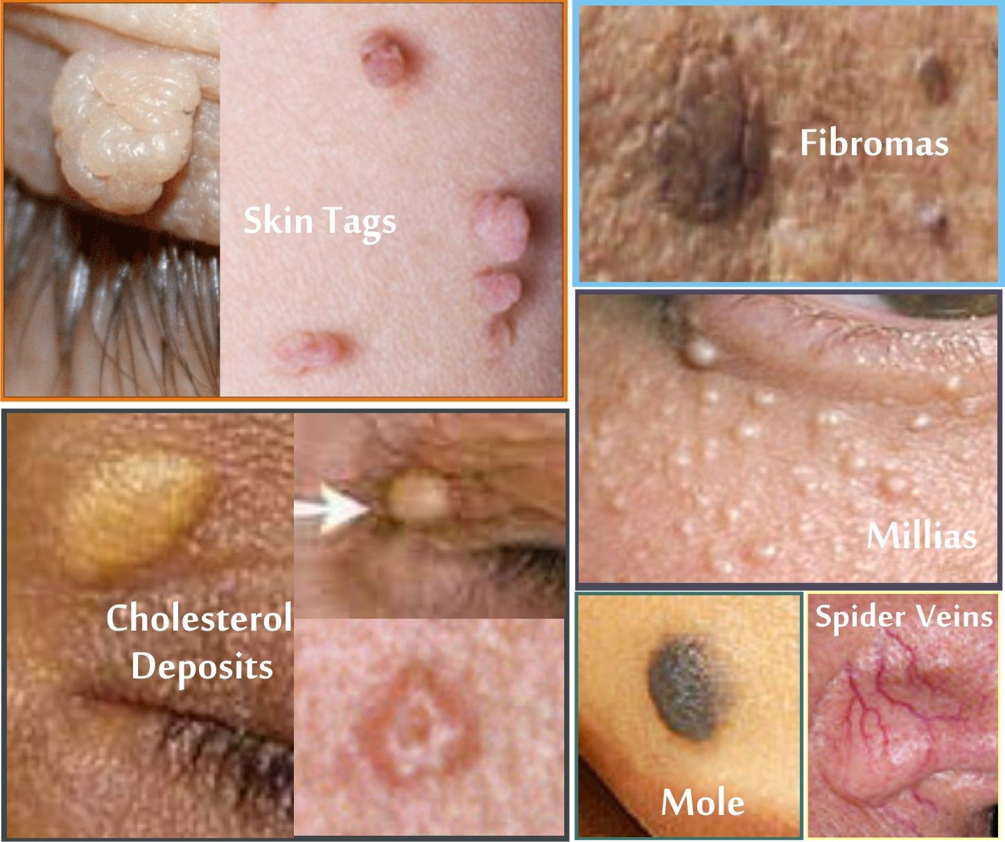 papilloma and moles