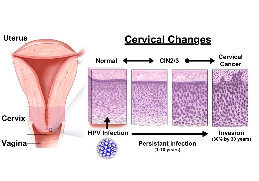 papilloma development tumor