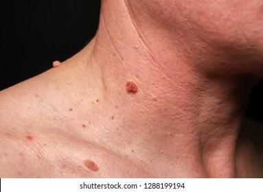 papilloma in colon)