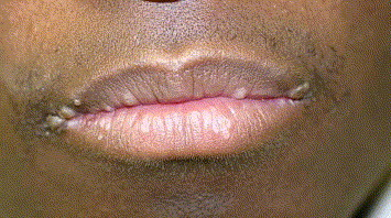 papilloma in lip)