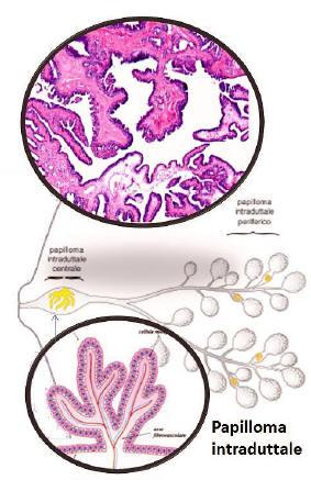 Cose un papilloma al seno Traducerea «fibroadenoma» în 25 de limbi