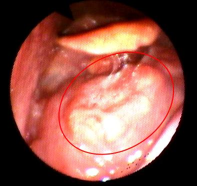 papilloma nasale)