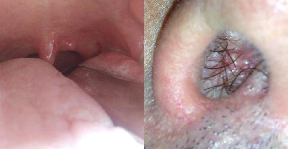 papilloma virus donne gola enterobius vermicularis oeuf