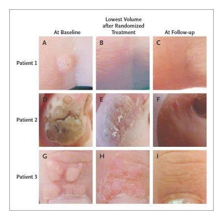 Papilloma skin treatment - Cancer genetic disposition