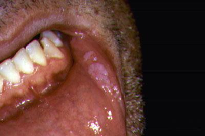 papillomas virus
