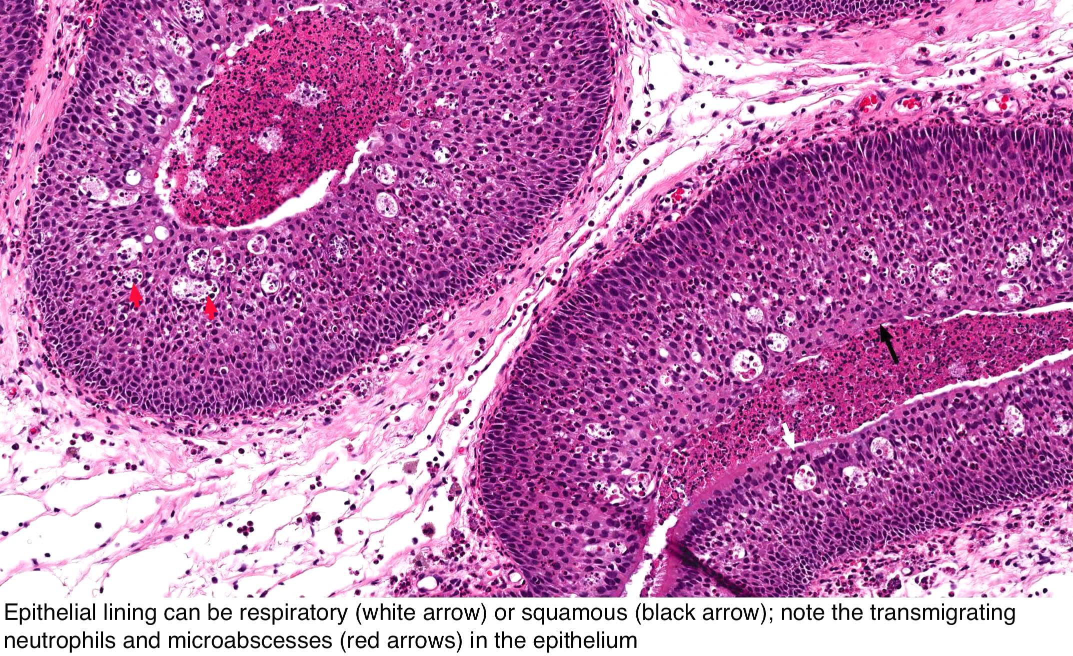 papillomatosis with dysplasia