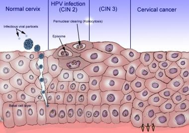 papillomavirus cin 3