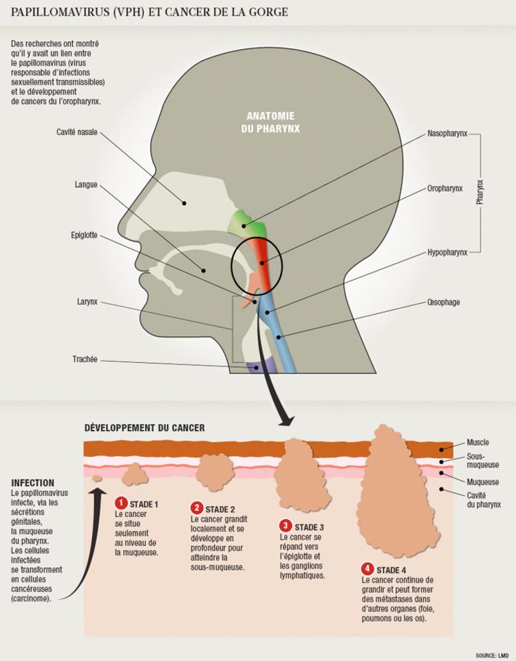 papillomavirus et cancer gorge simptome giardia bij mensen
