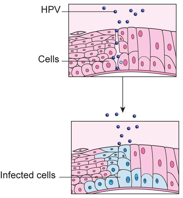papillomavirus et cause