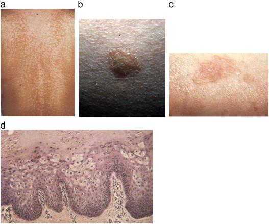 papillomavirus hpv 6 et 11