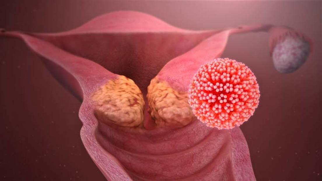papillomavirus japon)