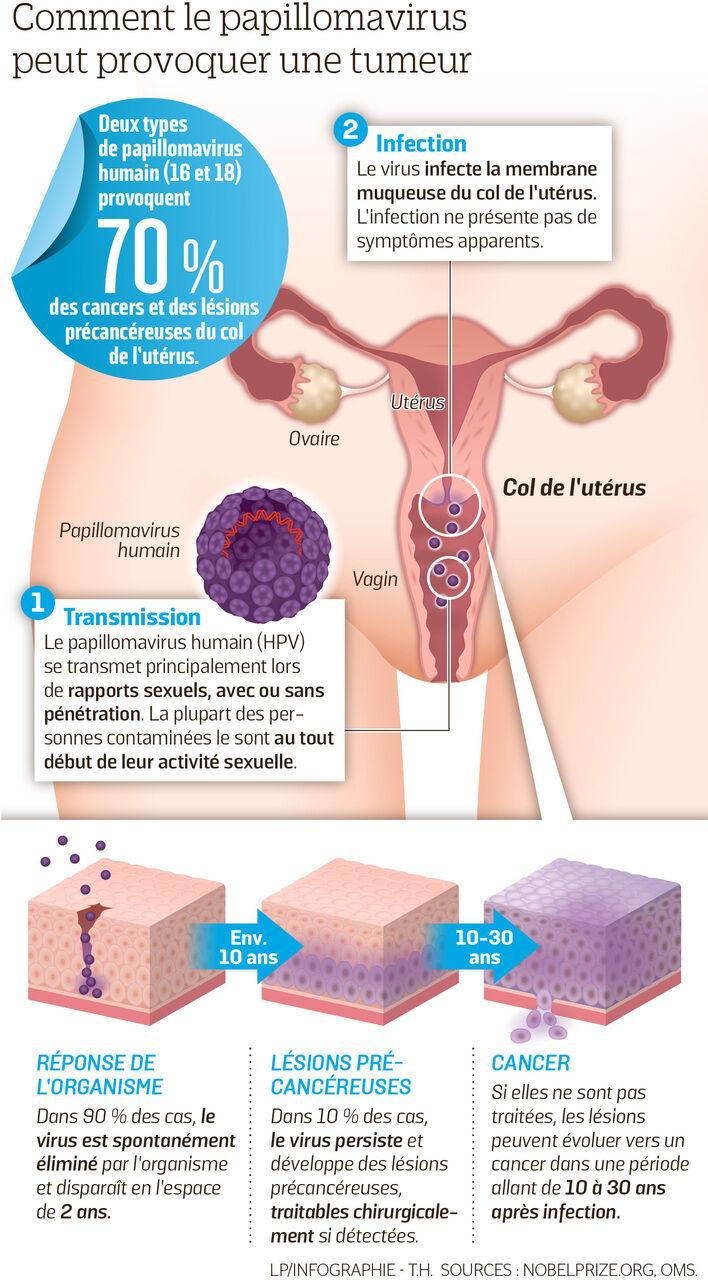 papillomavirus se guerit)