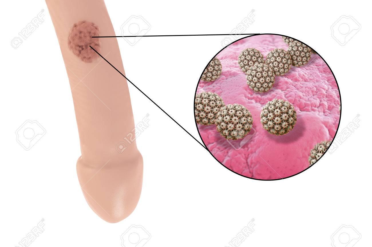 papillomavirus sur homme