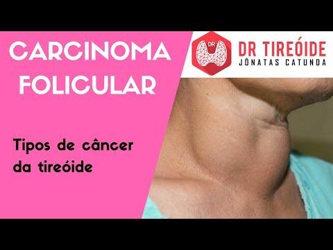 Que es cancer folicular