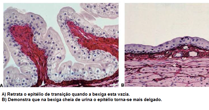 papiloma urotelial da bexiga