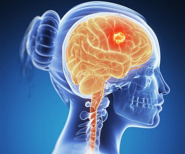 neuroendocrine cancer liver treatment