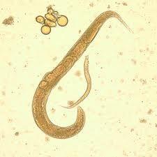 Paraziti in sange tratament