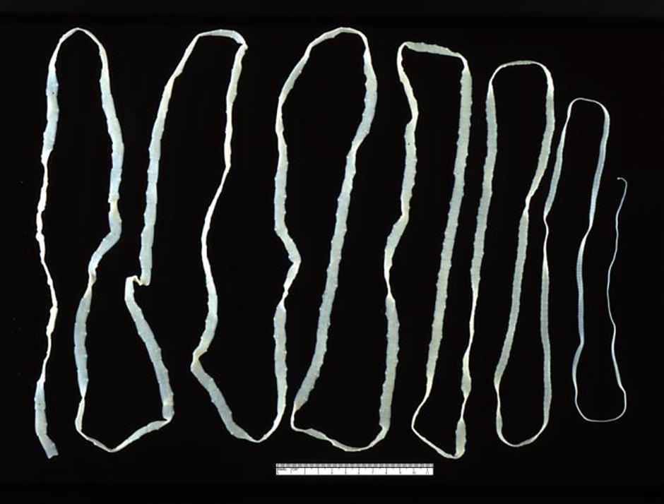 Paraziti u crijevima.