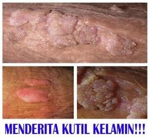 penyakit hpv laki laki)