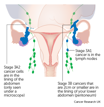peritoneal cancer with ovarian