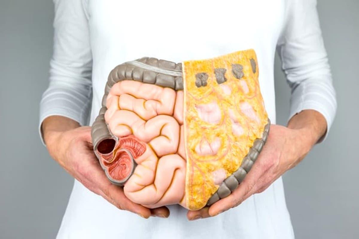 primele simptome la cancerul de colon)