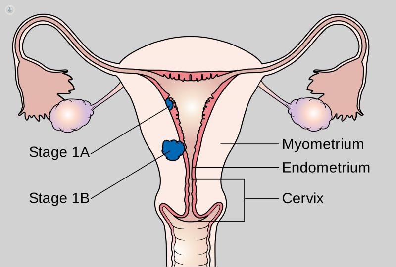 Virus papiloma mas agresivo, Oxiuros sintomas e tratamento