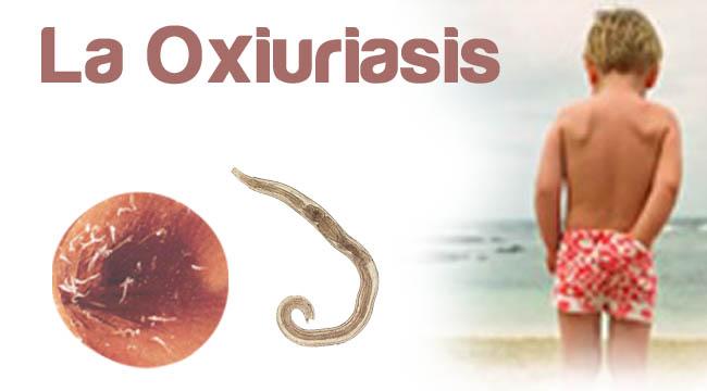 que es la enfermedad oxiuriasis