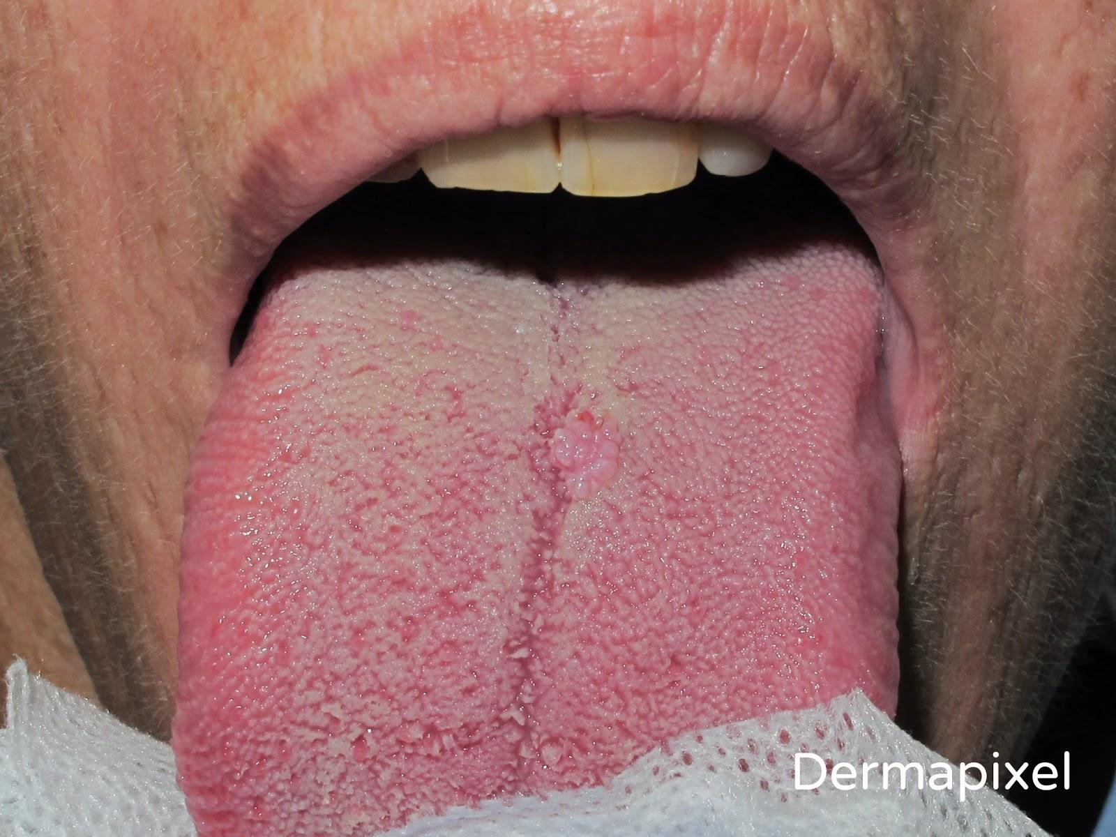 Papiloma humano lengua sintomas