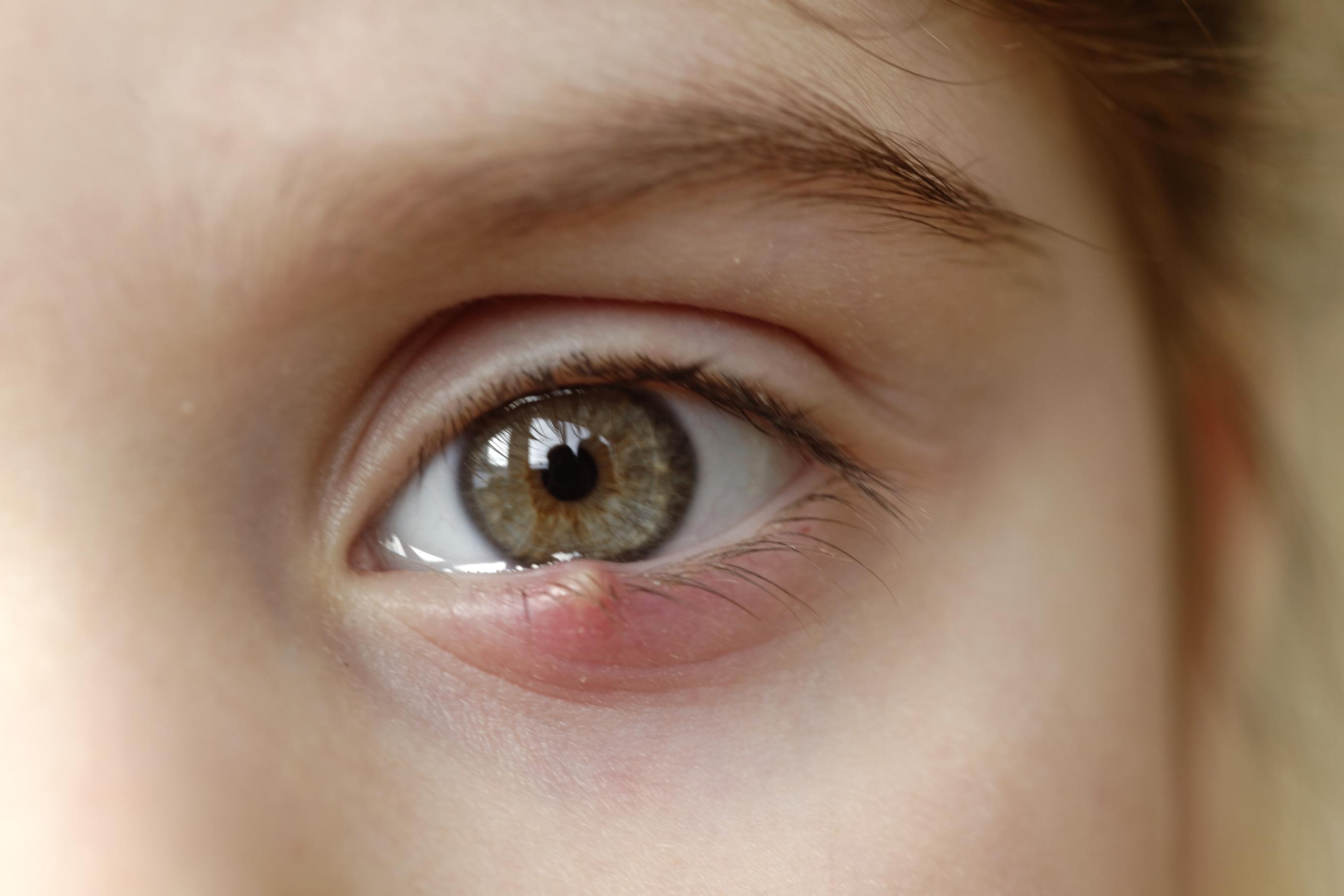 Que es papiloma en el ojo, Traducerea «estafiloma» în 25 de limbi