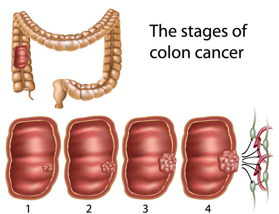 cancer malign colon